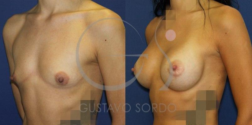 Antes y después de un aumento de pecho con prótesis de 330