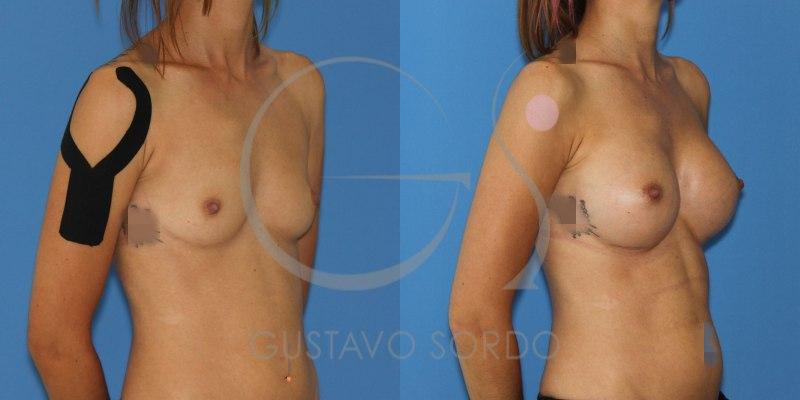 Antes y después aumento de pecho mama hipoplásica