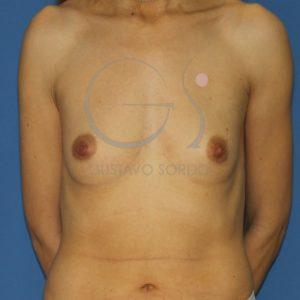aumento de pecho anatomicas altas antes frente