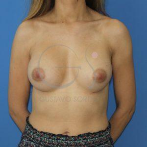 aumento de pecho anatomicas altas despues frente