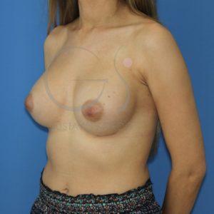 aumento de pecho anatomicas altas despues perfil
