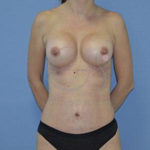 despues aumento pecho mas abdominoplastia frente