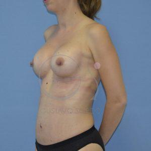 despues aumento pecho mas abdominoplastia perfil