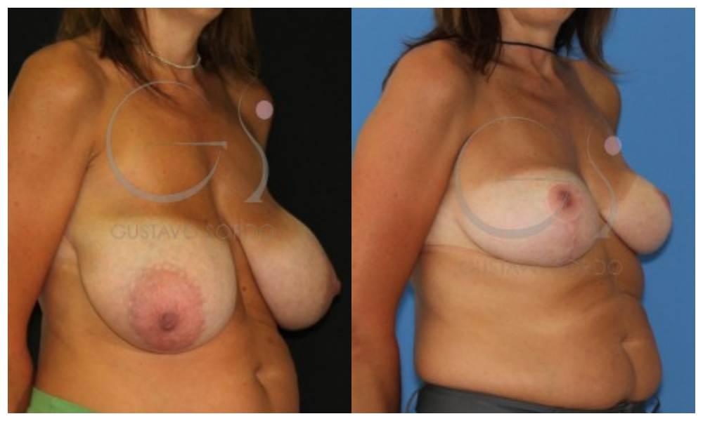 Riesgos de las reducción de pecho