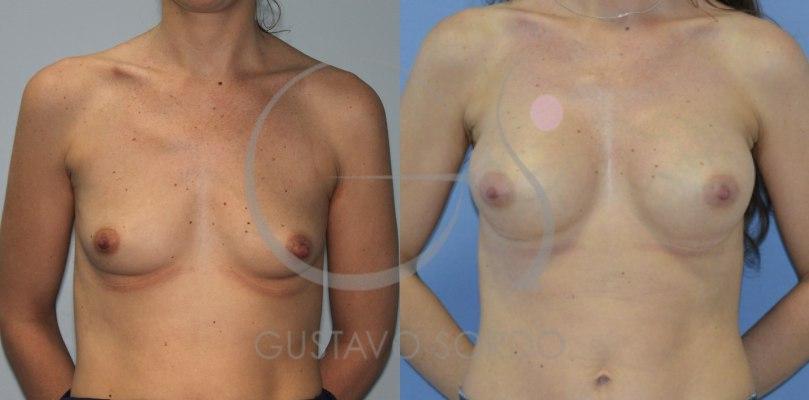 Aumento de pecho tras la lactancia: Fotos antes y después