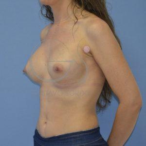 Después de un aumento de pecho después de la lactancia
