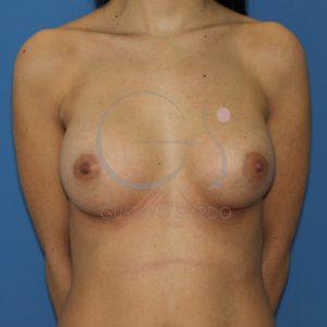 Después aumento pecho tórax largo