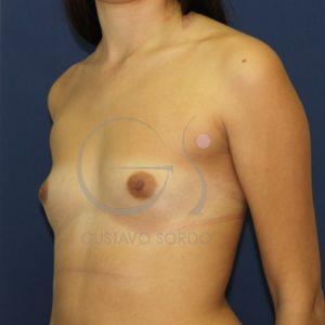 Antes aumento de mamas