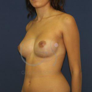 resultado operación aumento pecho anatomicas después perfil