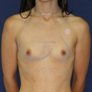 Antes del aumento de mamas con redondas