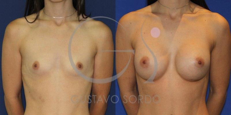Antes y después de aumento de mamas redondas