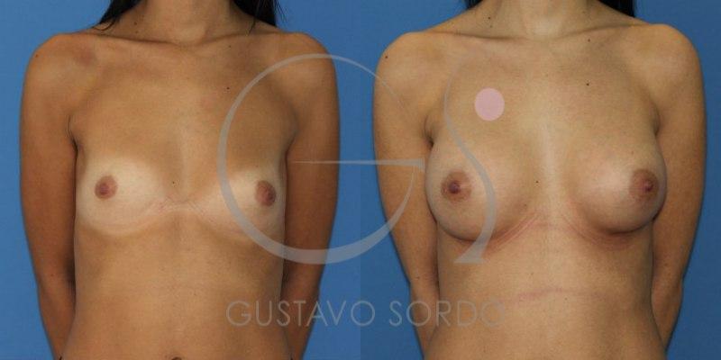 Aumento de pecho en torax alargado: Fotos antes y después