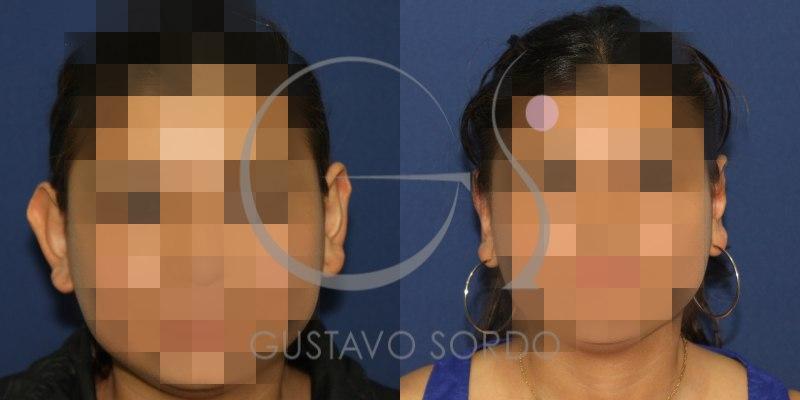 Resultados de una otoplastia: Fotos antes y después