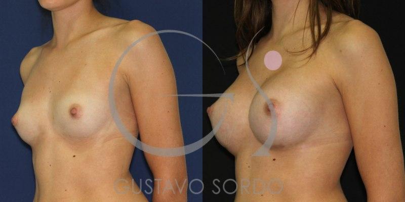 Aumento de pecho en mujer de 25 años. Implantes anatómicos [FOTOS]