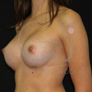 Después del aumento de pecho en mujer de 25 años