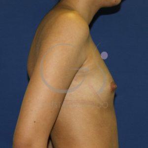 Antes aumento mamario, perfil