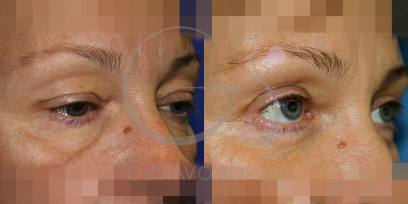 Antes y después de una blefaroplastia superior e inferior