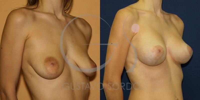 Caso de mastopexia: Fotos antes y después de la intervención