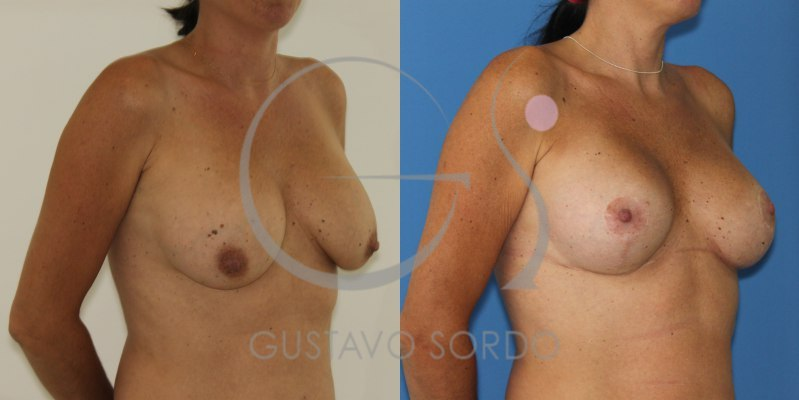 Segunda operación de pecho con mastopexia. Fotos antes y después.