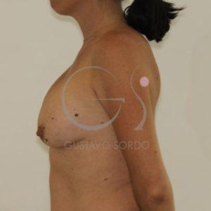 Antes de la segunda operación de pecho + mastopexia