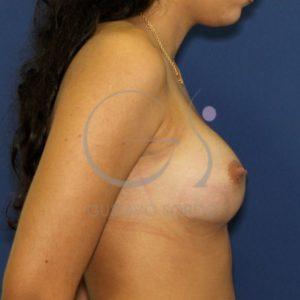 Después aumento mamario anatómicas