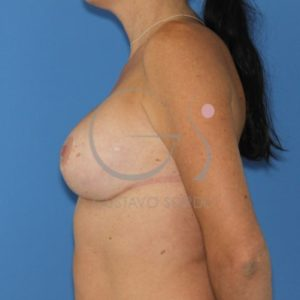 Después de la segunda operación de pecho + mastopexia