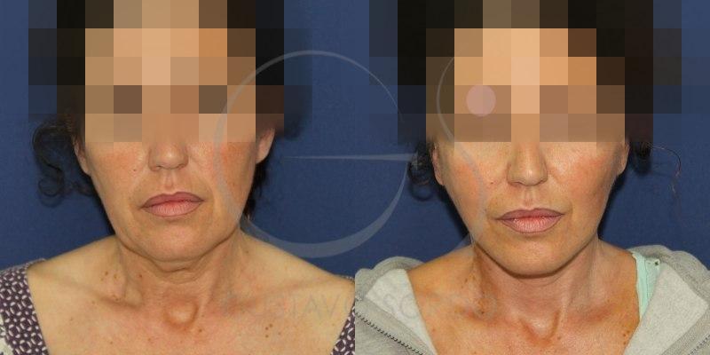 Antes y después del lifting cervicofacial
