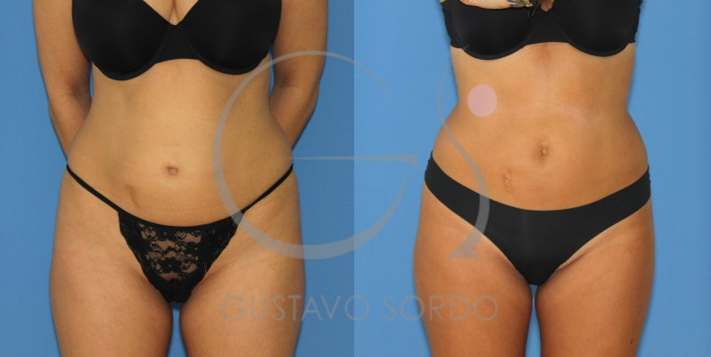 Antes y después de liposucción abdomen y flancos
