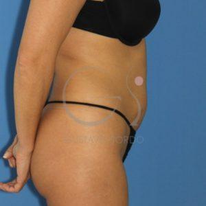 Antes de liposucción abdomen y flancos