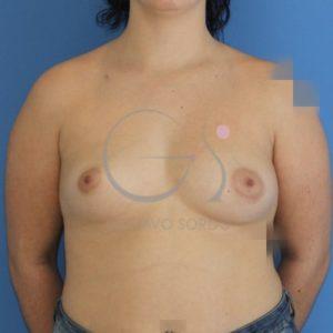 Antes del aumento de pecho, asimetría mamaria, frente