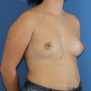 Antes del aumento de pecho, asimetría mamaria