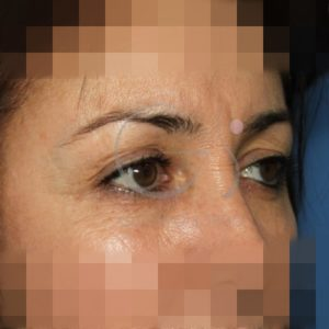 Antes de la blefaroplastia superior, perfil