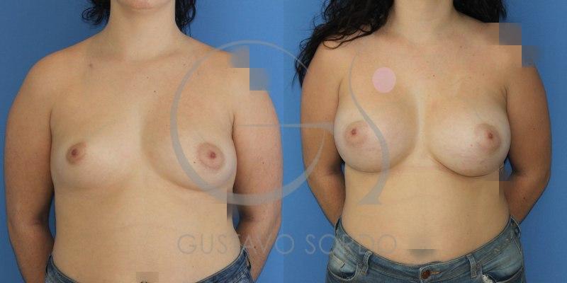 Asimetría mamaria: Corrección con implantes de pecho