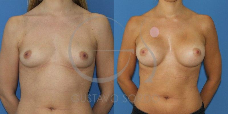 Antes y después de un aumento de pecho copa C