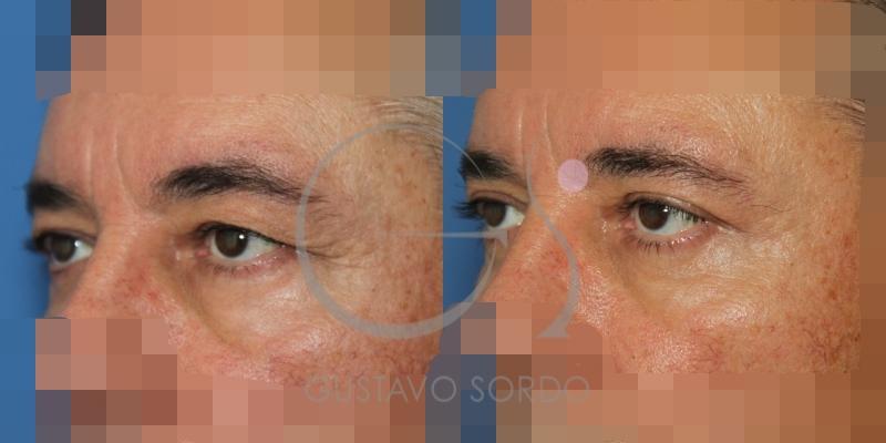 Antes y después de una blefaroplastia superior