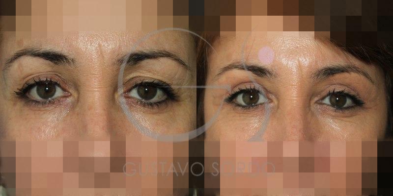 Blefaroplastia superior en mujer de 49 años: Fotos antes y después