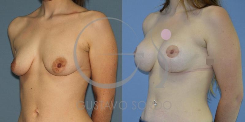 Mastopexia y aumento de pecho en mujer de 29 años