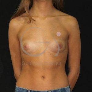 Antes del aumento de mamas