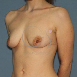 Antes mastopexia y aumento pecho