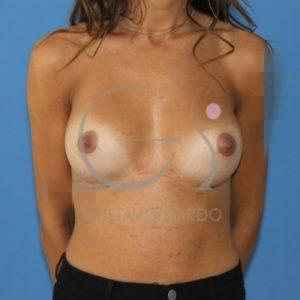 Después de un aumento de mamas en tórax alargado