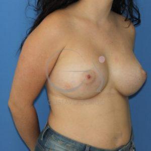 Después del aumento de pecho, asimetría mamaria