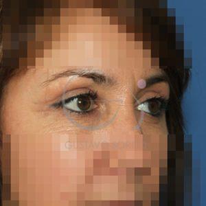 Después de la blefaroplastia superior, perfil