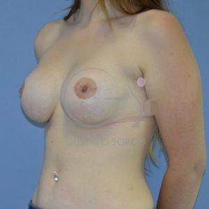 Después de la mastoexia y aumento de mamas