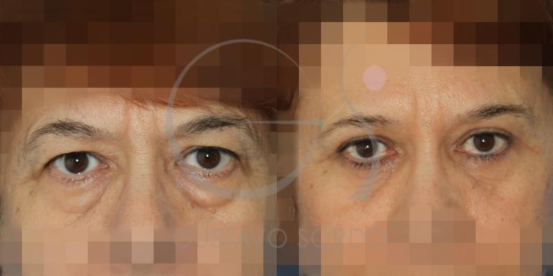 Antes y después de una blefaroplastia