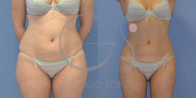 Antes y después de una liposucción en varias zonas