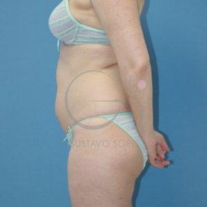 Antes de la liposucción en varias zonas