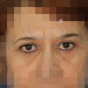 Después de la blefaroplastia doble y lipofilling