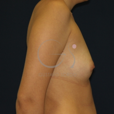 Si es posible hacer la depilación por la crema en el pecho