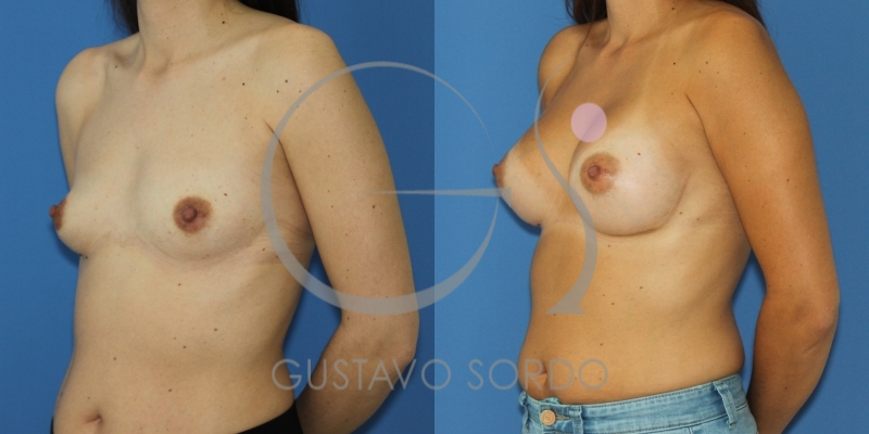 Resultado de un aumento de pecho: Antes y después