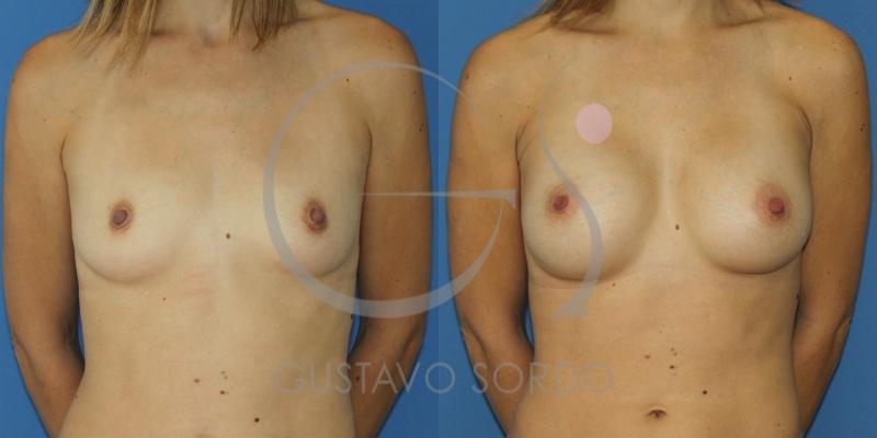 Aumento de pecho en mujer delgada: Resultados de la operación